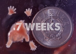Prenatal Development 7 Weeks