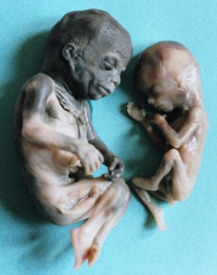Abortion 20-24 Weeks