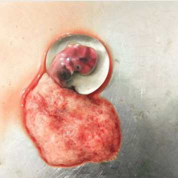 Amniotic Sac [7 Weeks Miscarriage]
