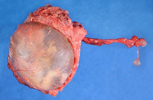 Amniotic Sac [Ectopic]