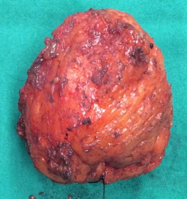 Cancerous Tumor [Breast Cancer]