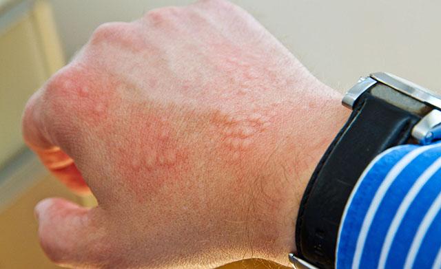 крапивница: симптомы, диагностика, лечение, профилактика