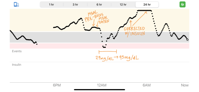 Dexcom continuous glucose monitor 24 hour graph showing large decrease in blood sugar and large spike in blood sugar a few hours later.