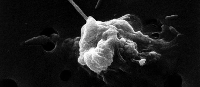 Curcumine de curcuma reprogrammant la mort des cellules cancéreuses