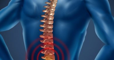 Fibromyalgia Can Mask Chronic Inflammatory Disease of the Spine and Pelvis