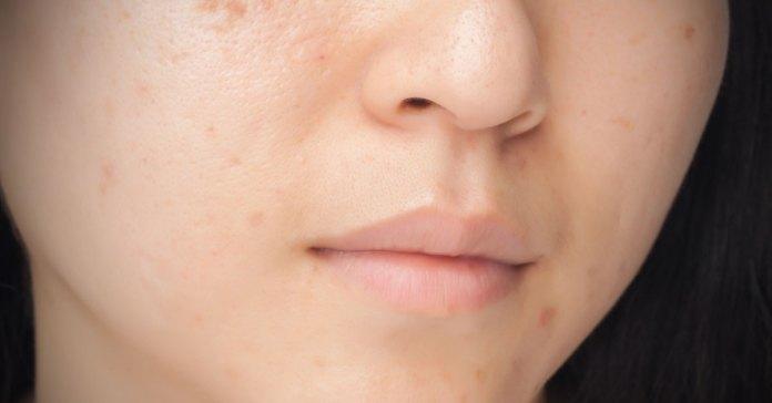 3-treats-acne
