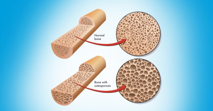 Fragility Fracture Could Be A Sign Of Osteoporosis