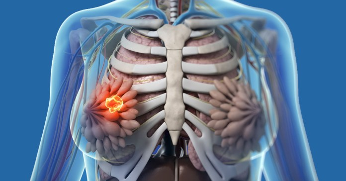 Natural Remedies For Fibrocystic Breasts