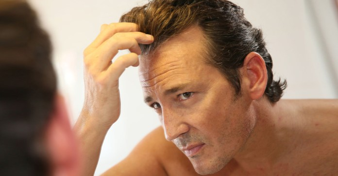 Is Balding An Indicator Of More Serious Problems?