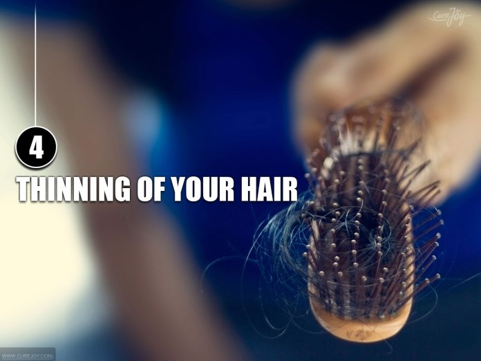 4-Thinning-of-Your-Hair