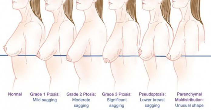 breast-3_ft
