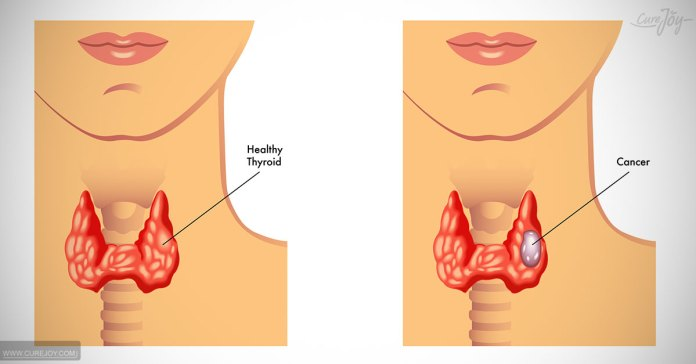 Symptoms of thyroid dirorder