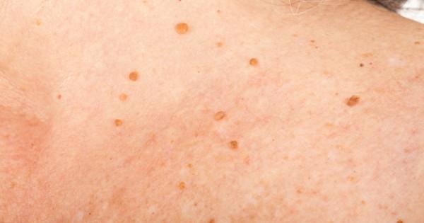 skin-tags-inline-600x315