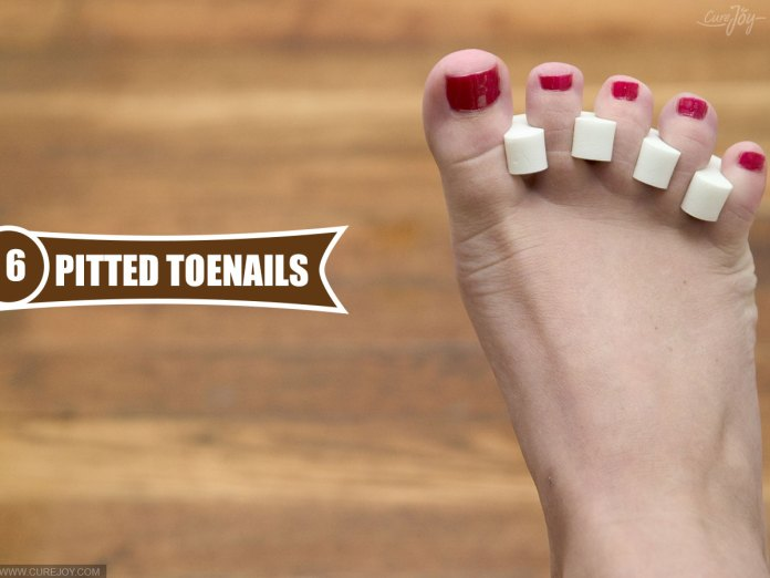 6-Pitted-Toenails