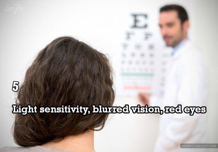 5-light-sensitivity-blurred-vision-red-eyes