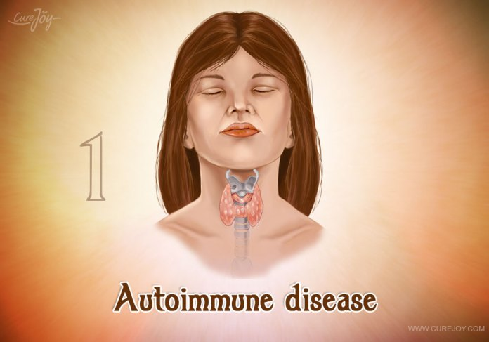 1-autoimmune-disease