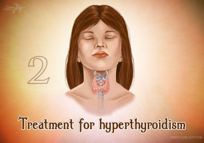 2-treatment-for-hyperthyroidism