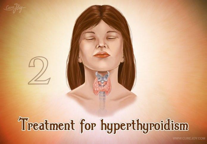 2-treatment-for-hyperthyroidism