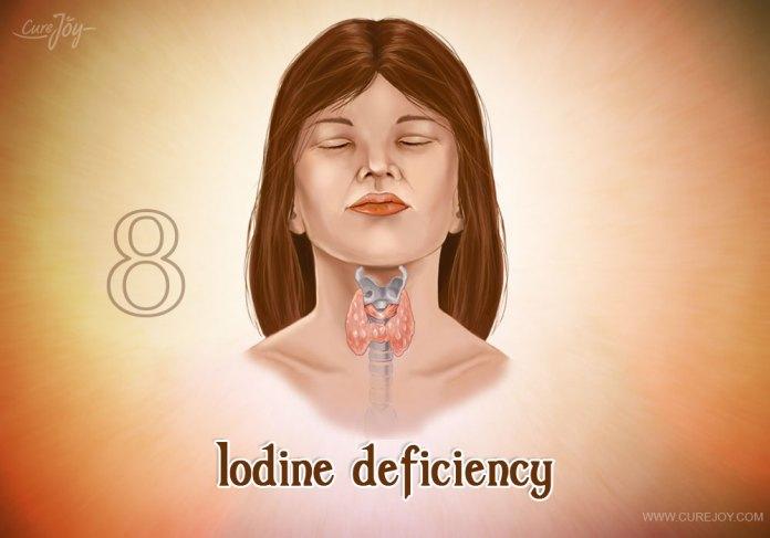 8-iodine-deficiency