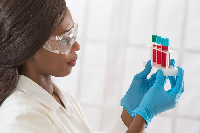 Cholesterol: 10 Medical Tests Every Woman Undergo