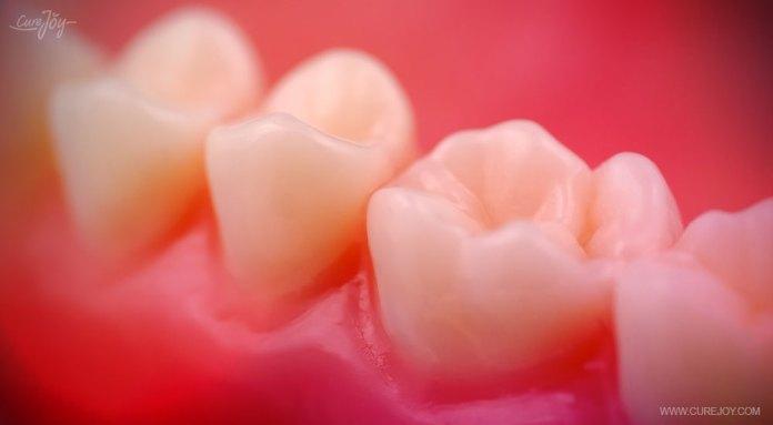 8-fights-cavities