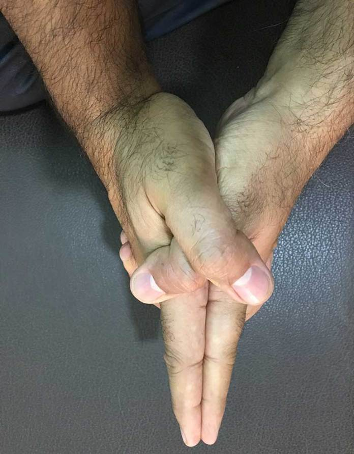 Kshepana Mudra: Use Of Mudras To Help Reduce Anxiety And Stress