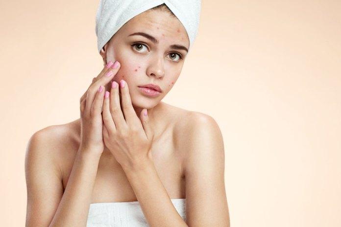 Pimples :Skin Care Benefits Of Sandalwood Powder