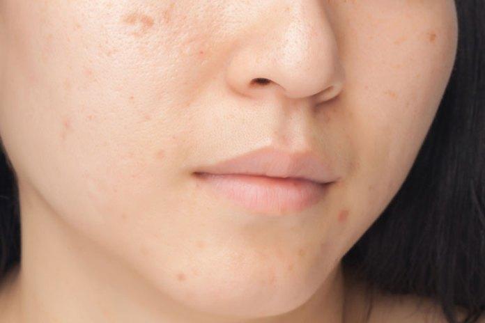 Blemishes :Skin Care BenefitDry SkinOf Sandalwood Powder