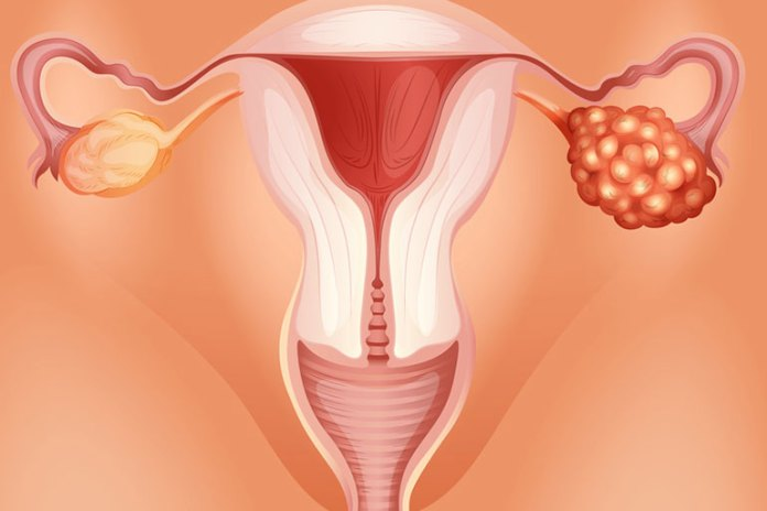 Ovarian Cancer: Why Do I Have Cramps But No Period