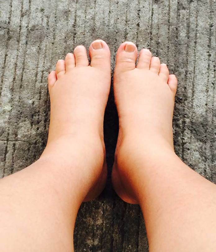 Swelling::Top Body Changes During And After Pregnancy