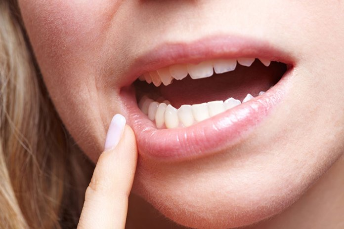 Lips: 7 Parts Of Your Face That Can Explain Your Health