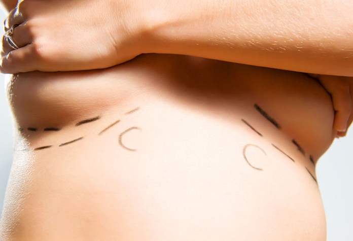 Breast Surgery: 6 Lesser-Known Reasons For Breastfeeding From One Breast