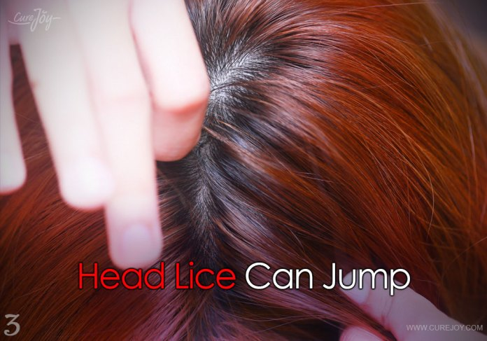 3-head-lice-can-jump