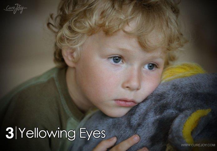 3-yellowing-eyes