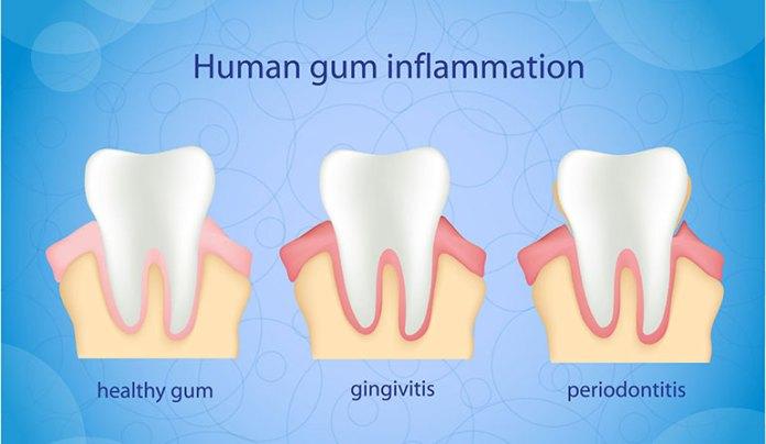 Miswak Prevents Gum Disease