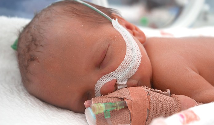 Choanal Atresia_When Do Babies Start Breathing Through Their Mouth