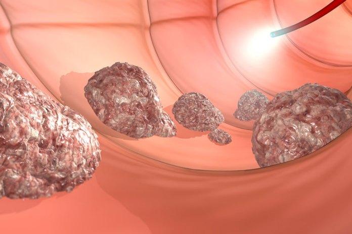 Treats Ulcers