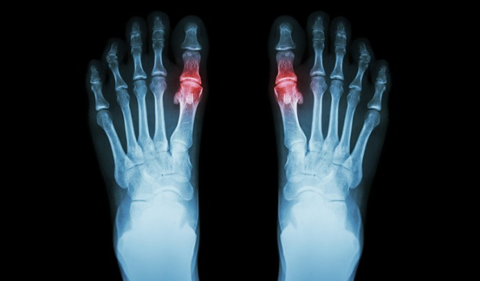What Triggers Gout_10 Essential Oils For Arthritis and Gout Treatment