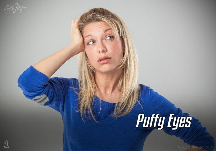 1-puffy-eyes