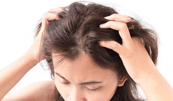 Alopecia Areata Causes Burning And Itching