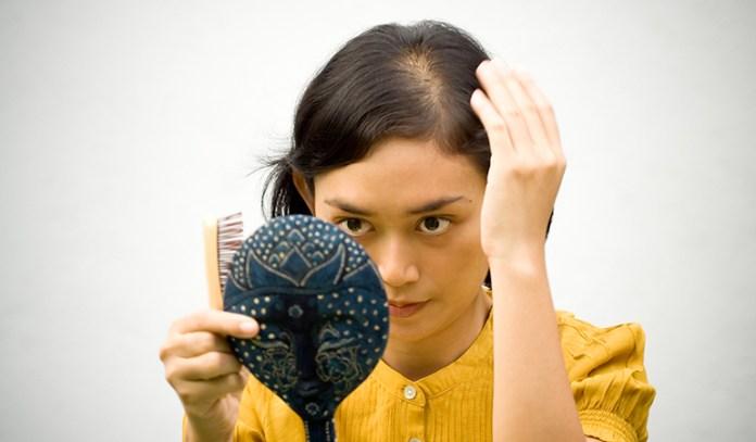 Hair Loss Is A Symptom Of Alopecia Areata
