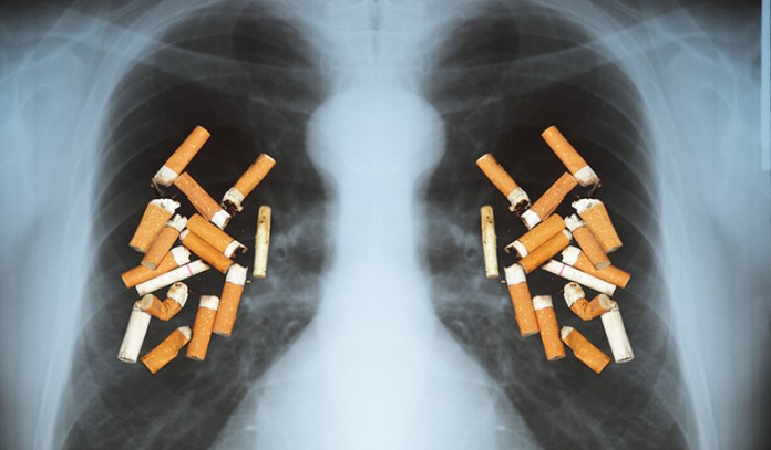 Secondhand smoking causes lung cancer