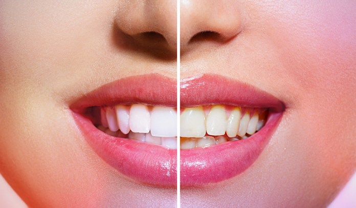 The abrasive agent removes yellow stains on our teeth.