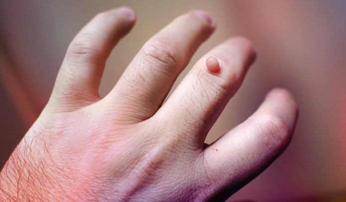 Warts are caused by HPV, and are contagious.