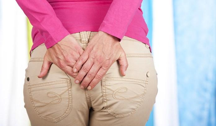 Hemorrhoids May Cause Yellow Stool