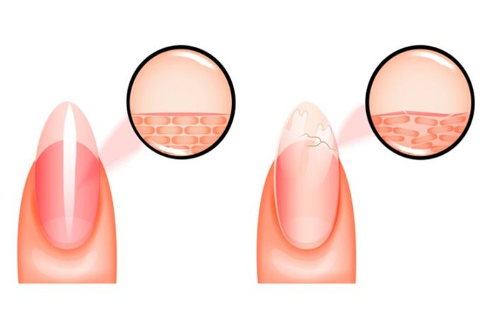 Brittle Nails Could Be Treated By Biotin