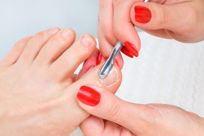 Applying tea tree oil to the nail with the infection and scrubbing improves the chances of recovery.