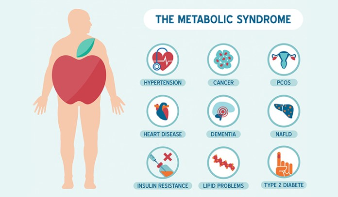Diet Soda Has Metabolic Syndrome Risk