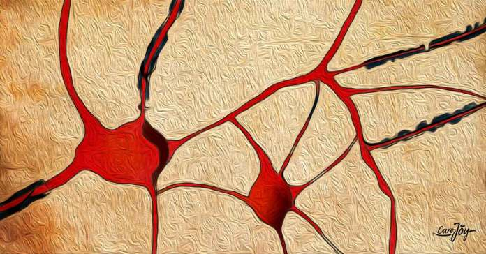 what causes multiple sclerosis