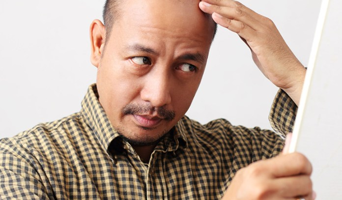 Hair Loss Is Usually Hereditary Or Caused By Hormonal Changes Or Stress